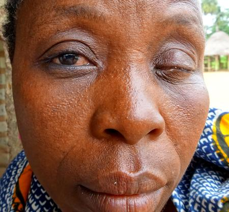 A Sierra Leonean lady already losing her eyesight. And there could be further not so visible complications. Who can help her and others?