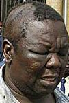The MDC leader after a brutal attack by ZANU-PF operatives