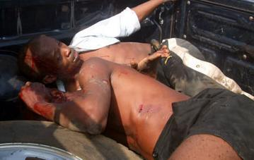 These are the victims of state-sponsored brutality as APC thugs attacked the offices of the main opposition SLPP in 2009.